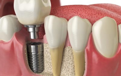 What is involved in the placement of my dental implant?